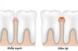 Viêm lợi gây rụng răng?