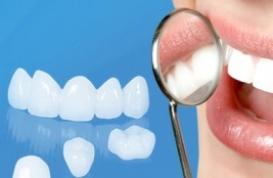 Mặt dán sứ Veneer - Lựa chọn hoàn hảo cho hàm răng đẹp