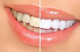 Cách khắc phục răng ố vàng