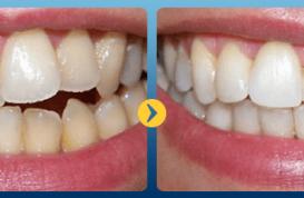 Nắn chỉnh răng mọc lệch như thế nào?