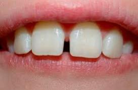 Nắn chỉnh răng cửa thưa như thế nào?