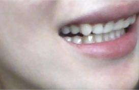 Nắn chỉnh răng quặp thế nào?