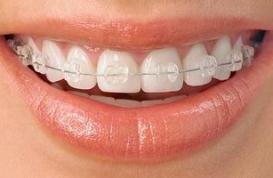 Tìm hiểu nắn chỉnh răng