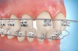 Tự nắn chỉnh răng tại nhà