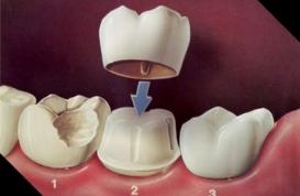 Vì sao bọc răng sứ thất bại?