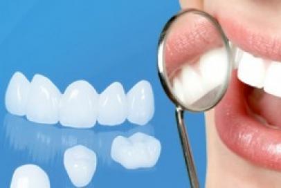 Bọc răng sứ Cercon giải pháp tuyệt vời cho răng gãy, vỡ