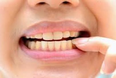 Răng nhiễm màu - Nguyên nhân và cách phòng ngừa